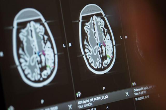 Ученые вернули тактильные ощущения парализованному человеку