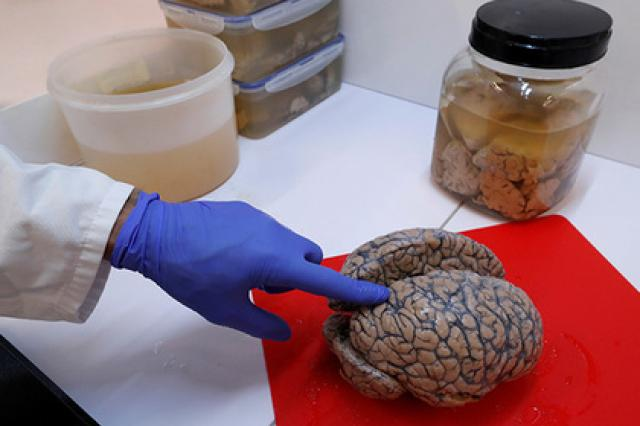 Ученые нашли способ влиять на центр желаний в мозгу человека