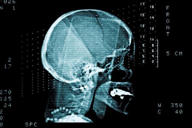 Ученые рассказали о разной скорости старения мозга женщин и мужчин